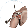 arthroscopic shoulder surgery by Dr. McCarthy
